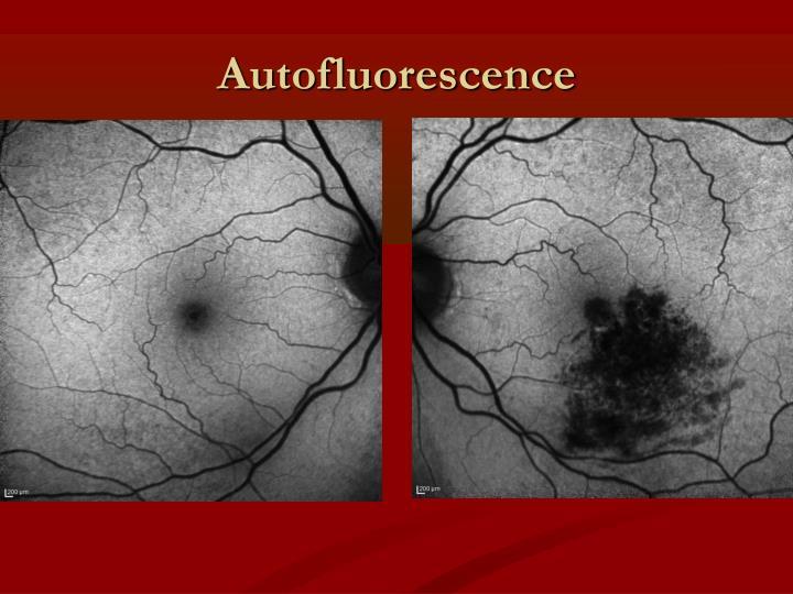 Autofluorescence