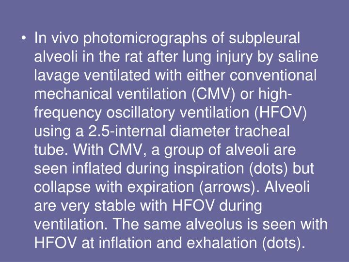 In vivo photomicrographs of subpleural alveoli in the rat after lung injury by saline lavage ventilated with either conventional mechanical ventilation (CMV) or high-frequency oscillatory ventilation (HFOV) using a 2.5-internal diameter tracheal tube. With CMV, a group of alveoli are seen inflated during inspiration (dots) but collapse with expiration (arrows). Alveoli are very stable with HFOV during ventilation. The same alveolus is seen with HFOV at inflation and exhalation (dots).