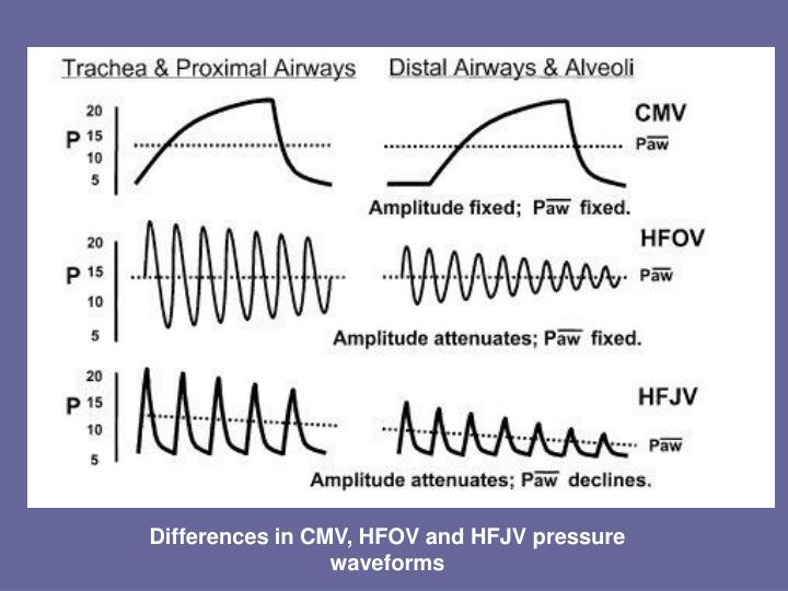 Differences in CMV, HFOV and HFJV pressure waveforms