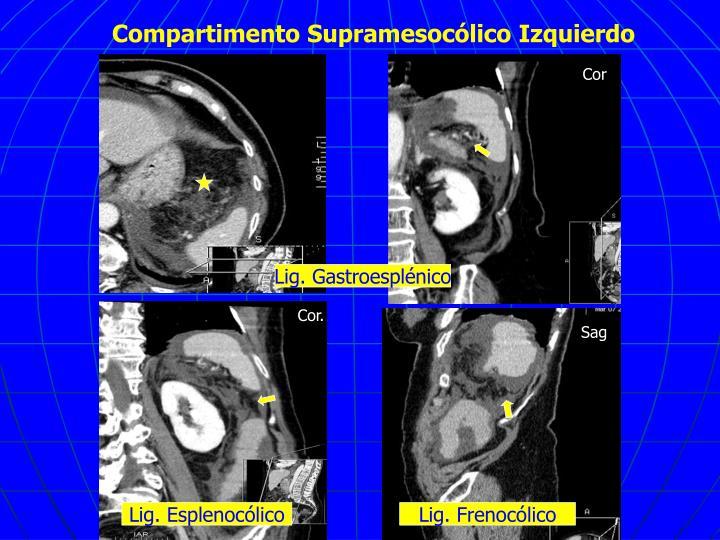 Compartimento Supramesocólico Izquierdo