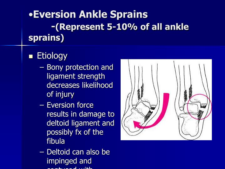 Eversion Ankle Sprains