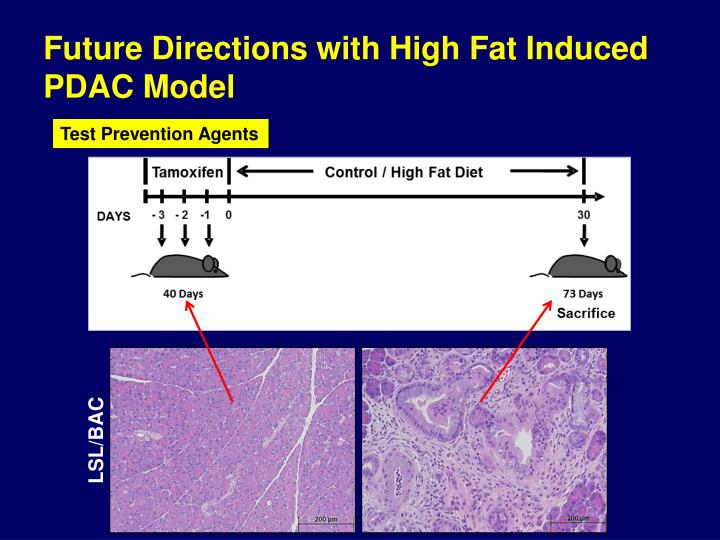 Future Directions with High Fat Induced PDAC Model