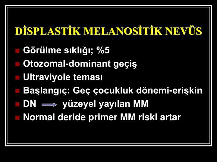 DİSPLASTİK MELANOSİTİK NEVÜS