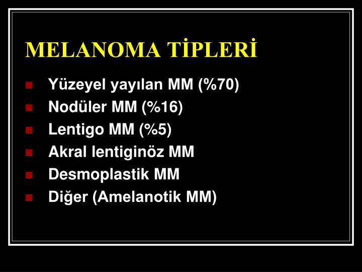 MELANOMA TİPLERİ