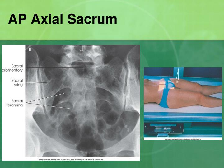 AP Axial Sacrum