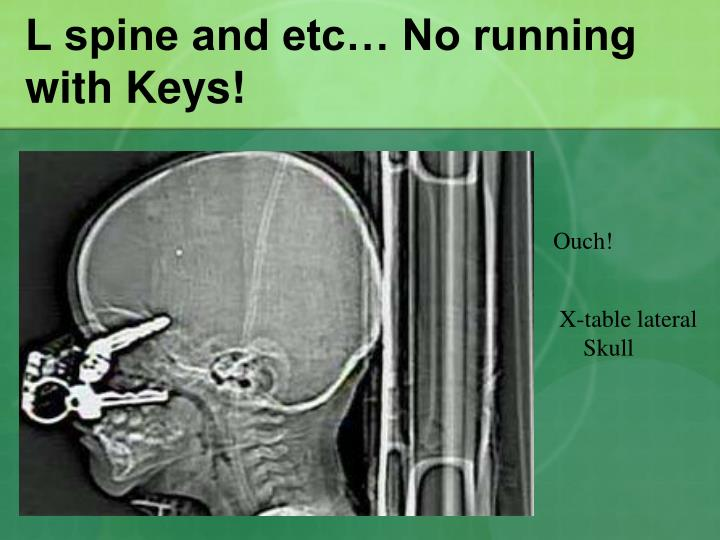 L spine and etc no running with keys