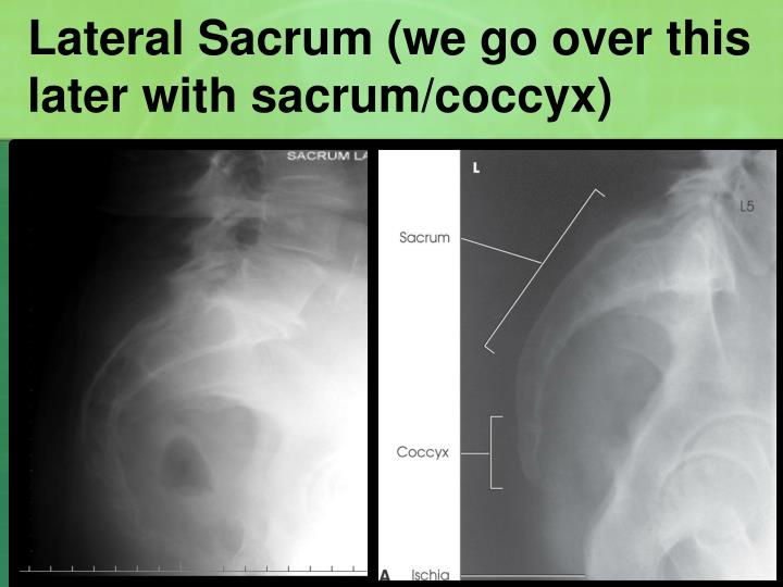 Lateral Sacrum (we go over this  later with sacrum/coccyx)