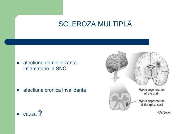 Scleroza multipl