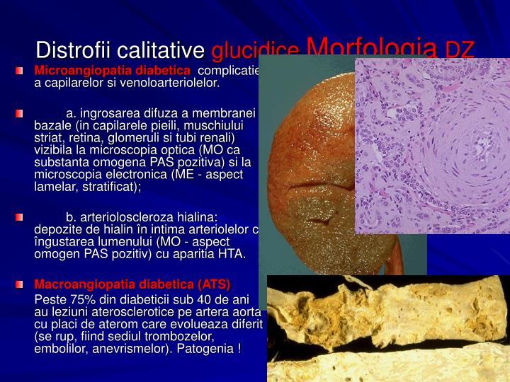 Microangiopatia diabetica