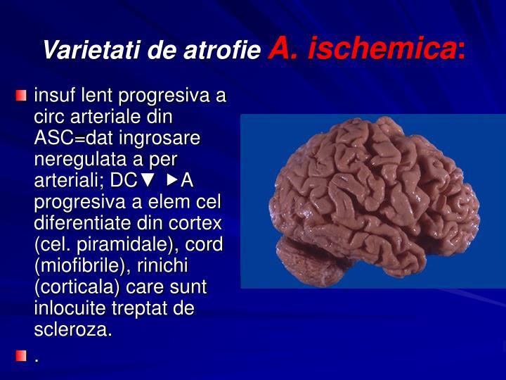 insuf lent progresiva a circ arteriale din ASC=dat ingrosare neregulata a per arteriali; DC