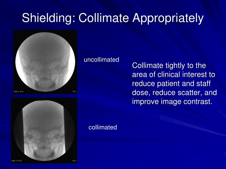 Shielding: Collimate Appropriately