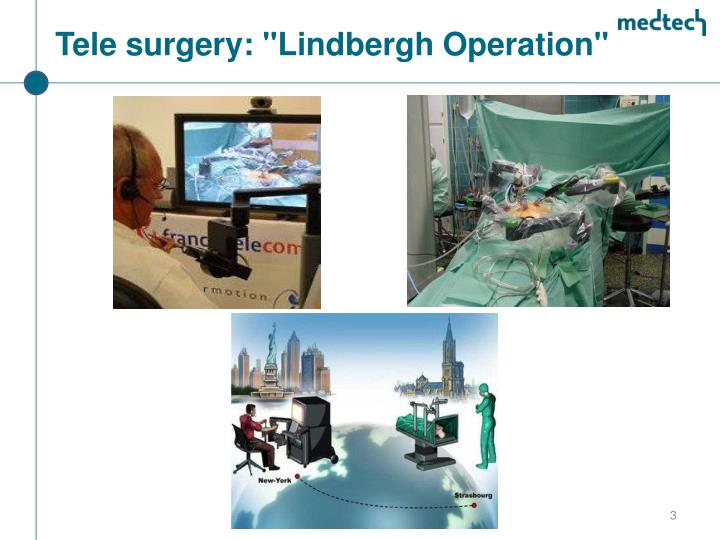 "Tele surgery: ""Lindbergh Operation"""