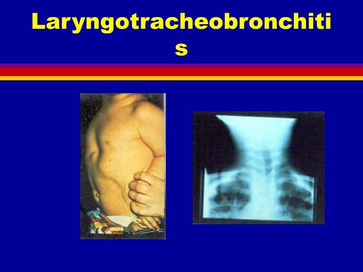 Laryngotracheobronchitis