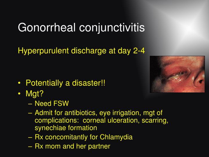 Gonorrheal conjunctivitis