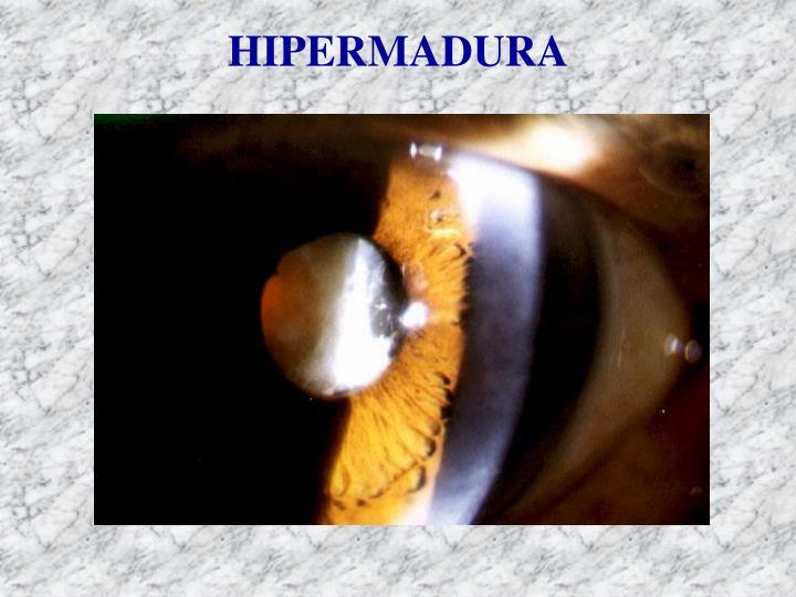 HIPERMADURA