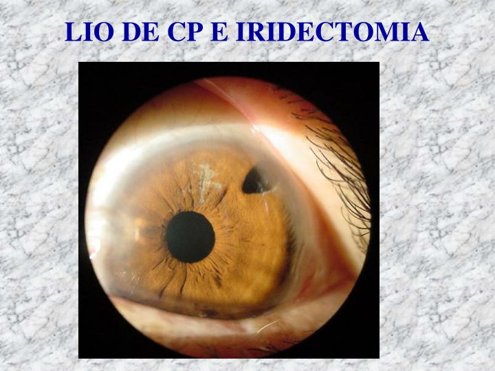 LIO DE CP E IRIDECTOMIA
