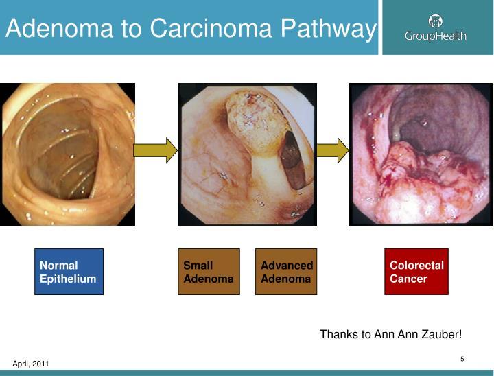 Adenoma to Carcinoma Pathway