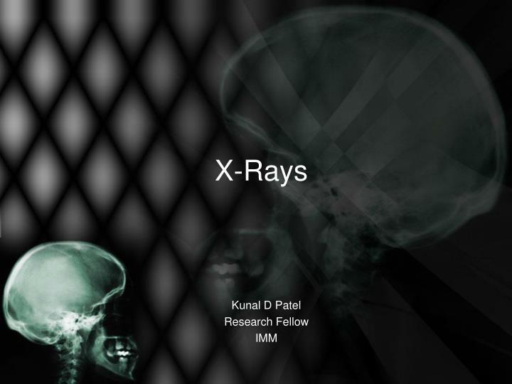 x rays n.
