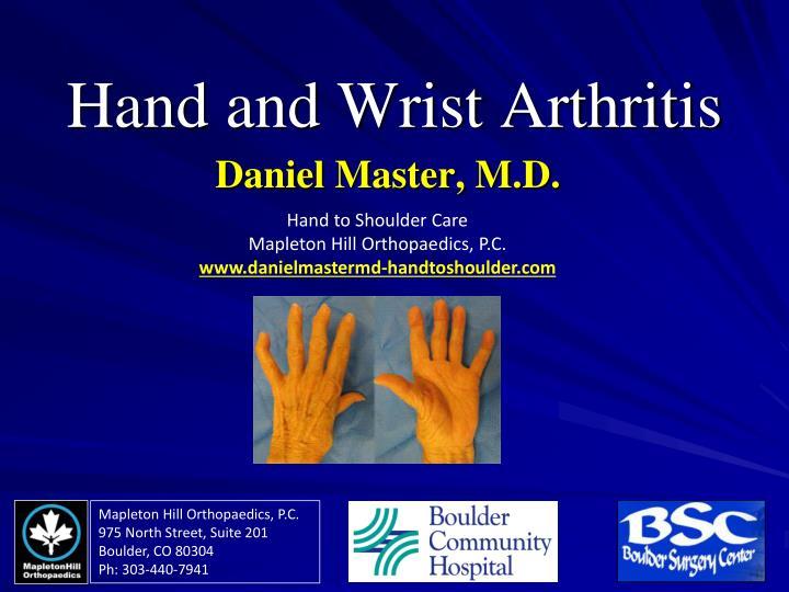 hand and wrist arthritis n.