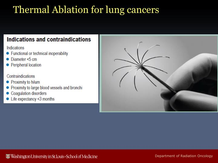Thermal Ablation for lung cancers
