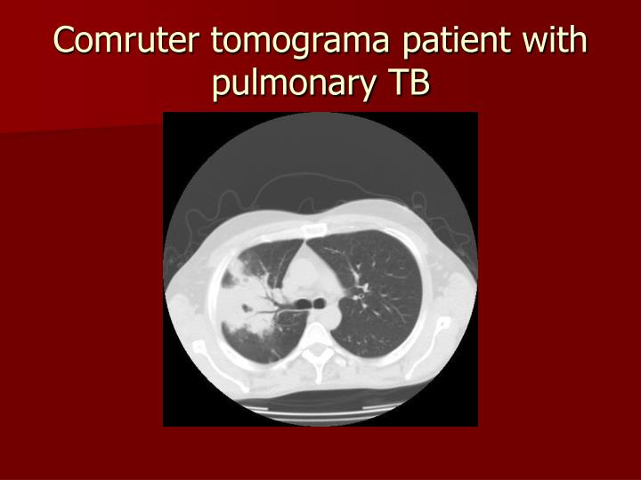 Comruter tomograma patient with pulmonary TB