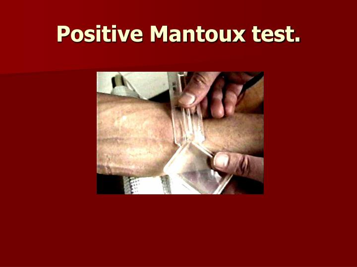 Positive Mantoux test.