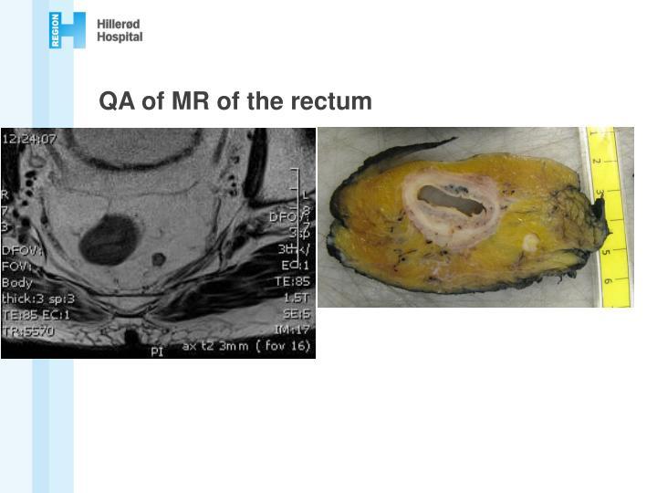 QA of MR of the rectum