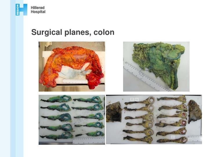 Surgical planes, colon