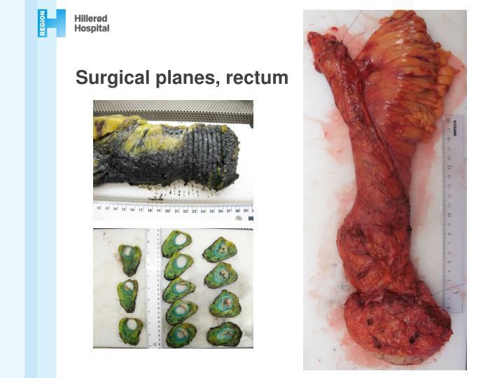 Surgical planes, rectum