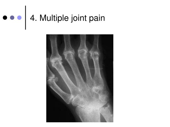 4. Multiple joint pain