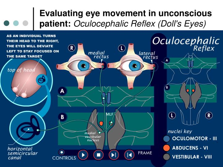 Evaluating eye movement in unconscious patient: