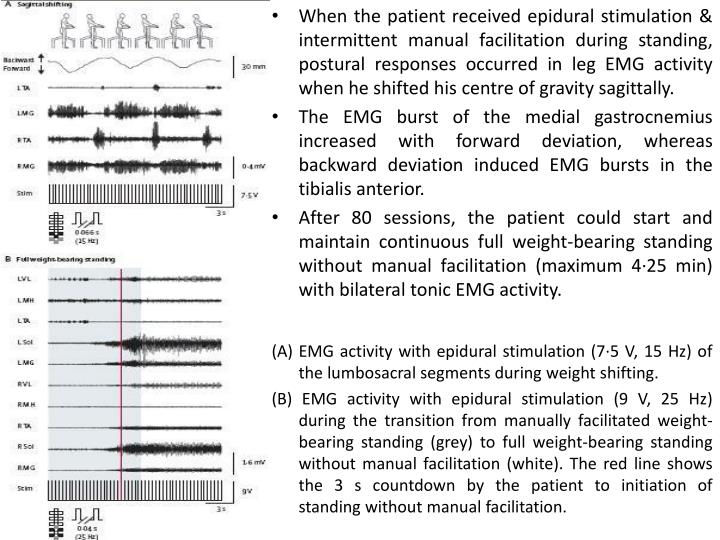 When the patient received epidural stimulation & intermittent manual facilitation during standing, postural responses occurred in leg EMG activity when he shifted his centre of gravity sagittally.