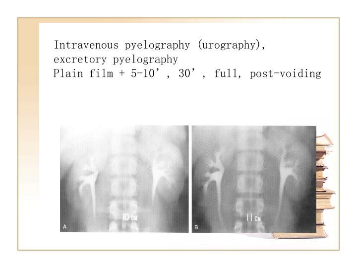 Intravenous pyelography (urography), excretory pyelography