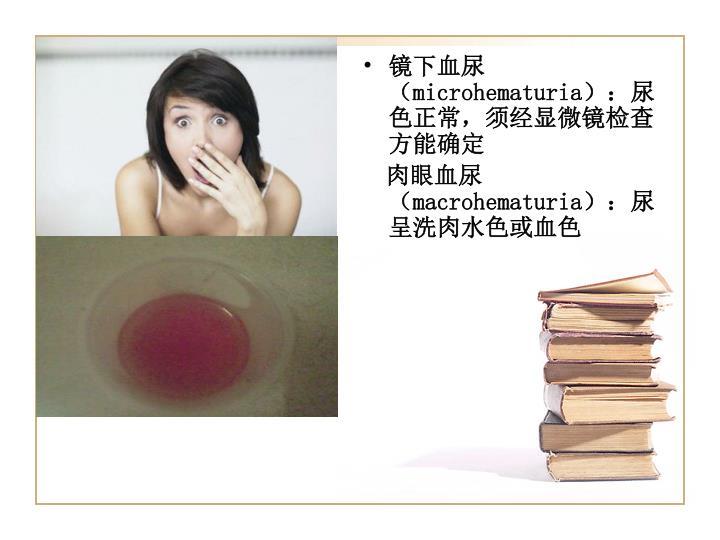 镜下血尿(