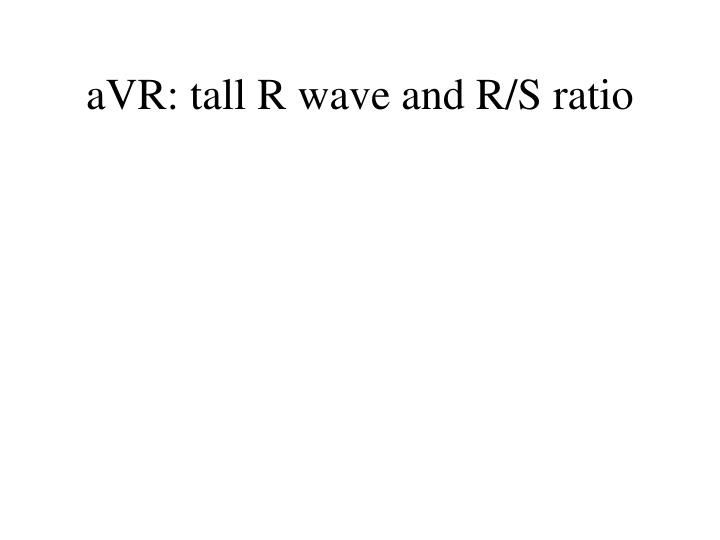 aVR: tall R wave and R/S ratio