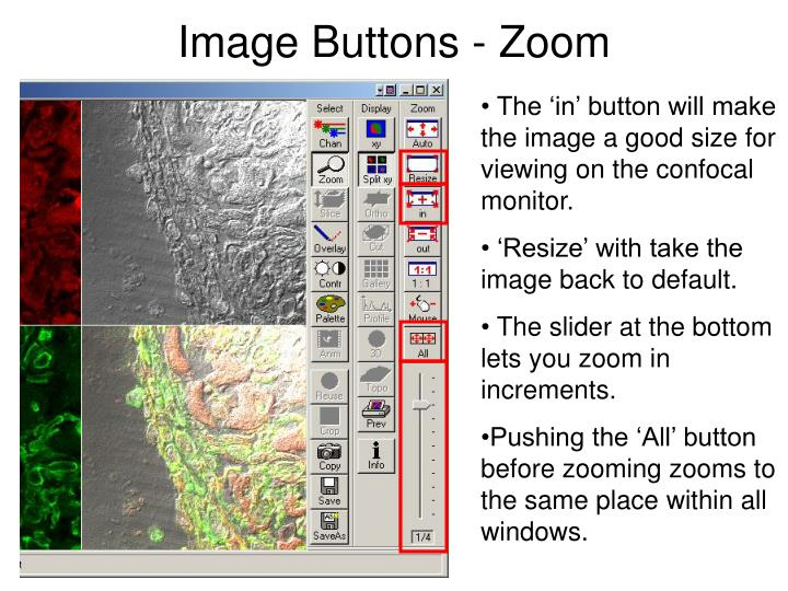 Image Buttons - Zoom