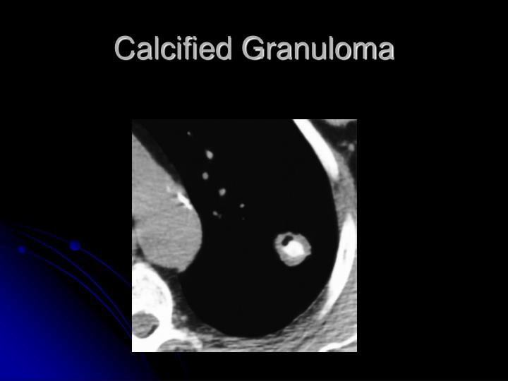Calcified Granuloma
