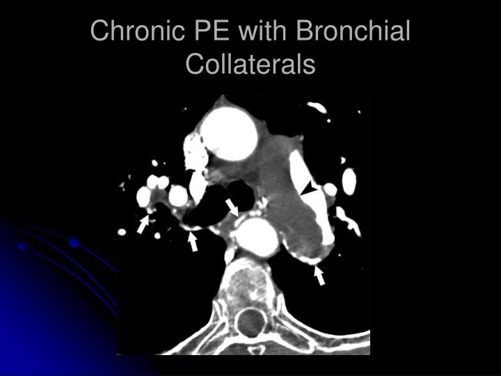 Chronic PE with Bronchial Collaterals