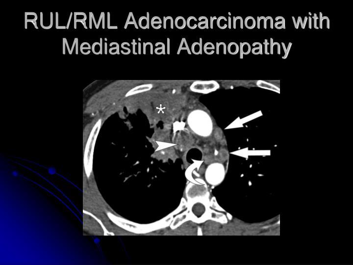 RUL/RML Adenocarcinoma with Mediastinal Adenopathy