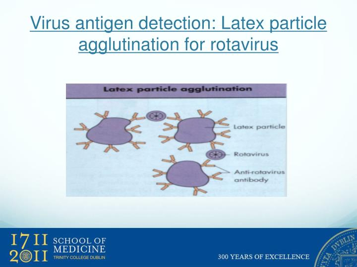 Virus antigen detection: Latex particle agglutination for rotavirus
