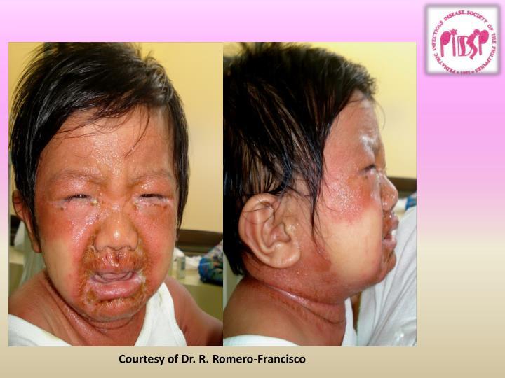 Courtesy of Dr. R. Romero-Francisco