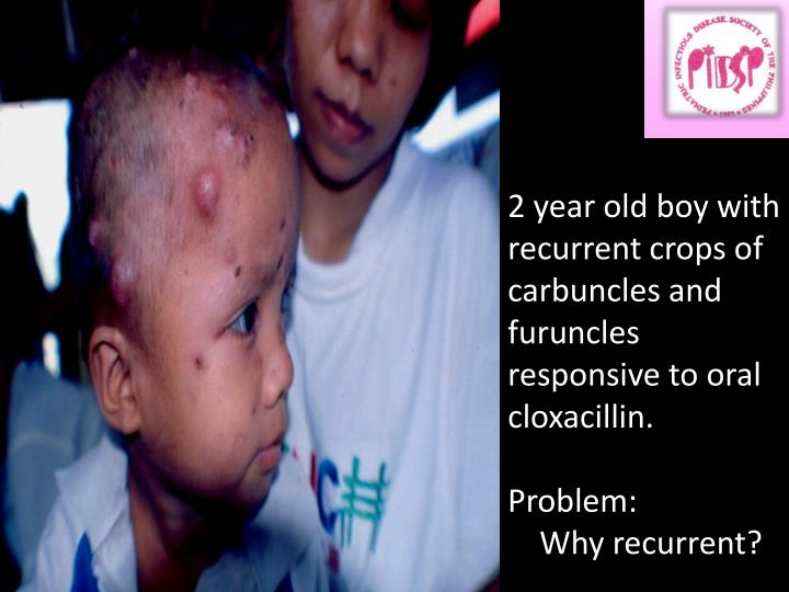 2 year old boy with recurrent crops of carbuncles and furuncles responsive to oral