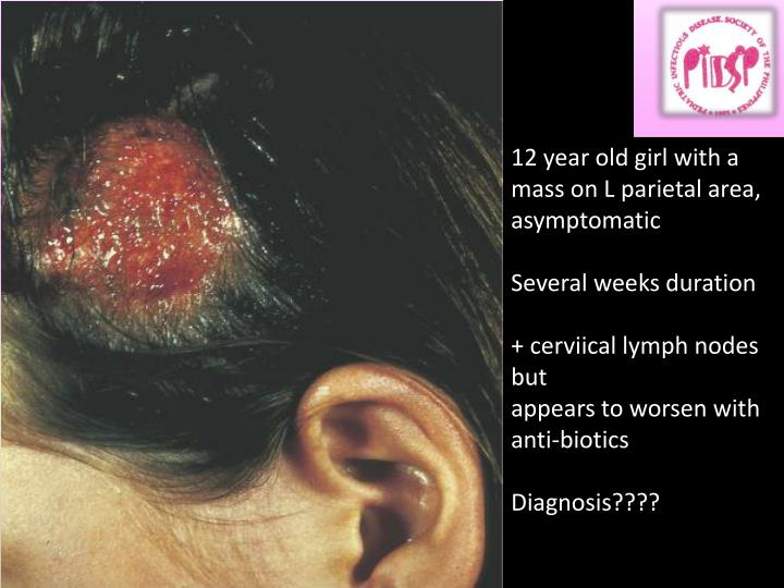 12 year old girl with a mass on L parietal area, asymptomatic