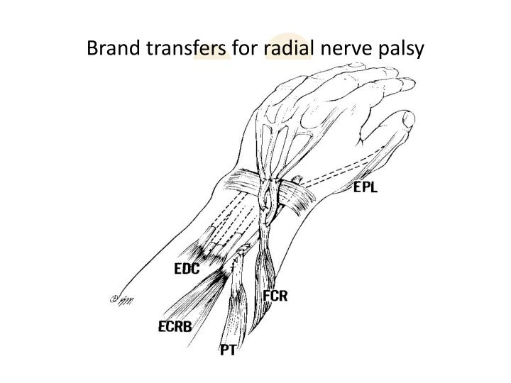Brand transfers for radial nerve palsy