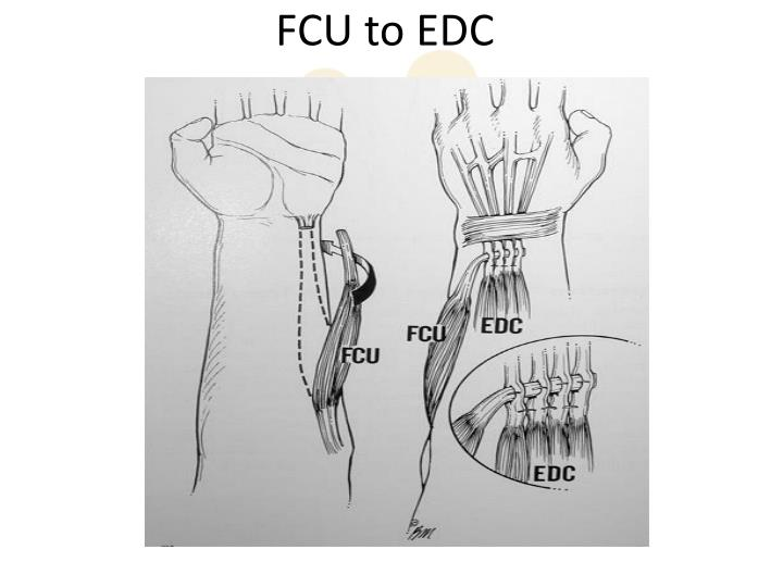 FCU to EDC