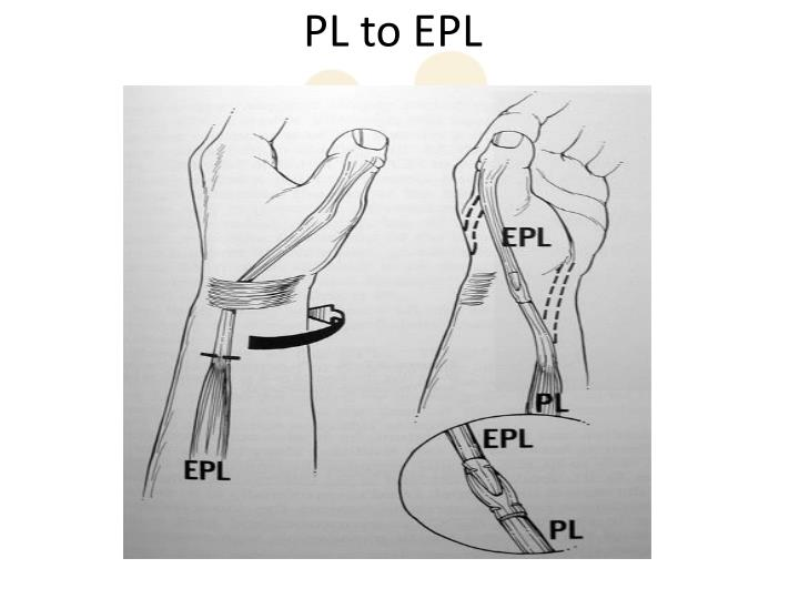 PL to EPL