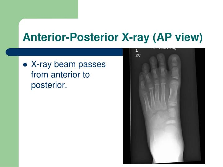 Anterior-Posterior X-ray (AP view)
