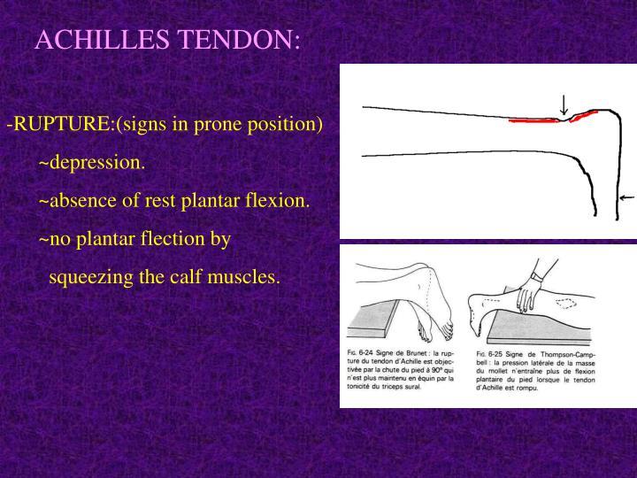 ACHILLES TENDON: