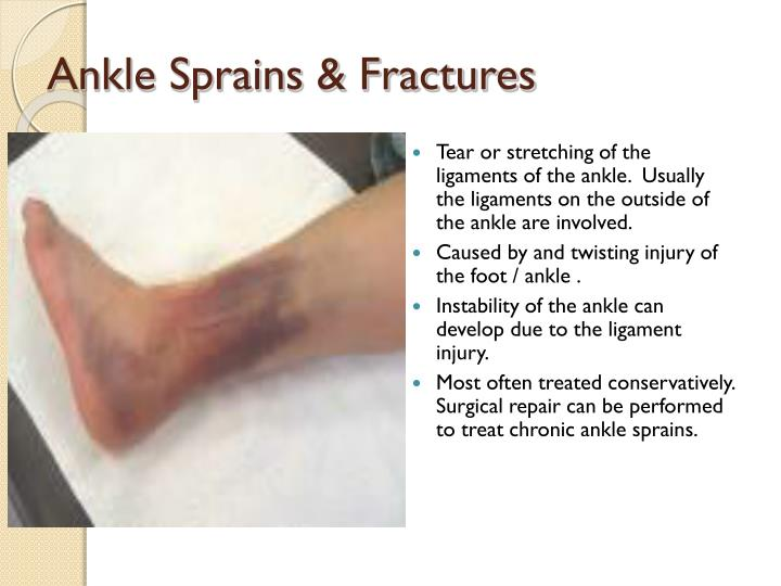 Ankle Sprains & Fractures