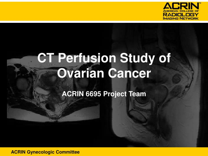 Ct perfusion study of ovarian cancer